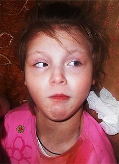 Даша Комиссарова, 10 лет, детский церебральный паралич, требуется реабилитационное устройство СВОШ. 99324 руб.