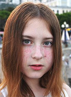 Настя Новикова, 15 лет, системная красная волчанка, требуется обследование и лечение. 39602 руб.