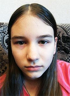 Яна Зуева, 13 лет, торсионная идиопатическая дистония (аномальное сокращение мышц), требуется лечение. 199620 руб.