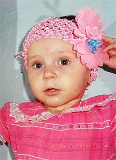 Милана Дергалева, полтора года, врожденный порок сердца, спасет эндоваскулярная операция. 333750 руб.