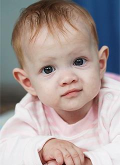 Марйам Халилова, 10 месяцев, врожденный порок сердца, спасет эндоваскулярная операция, требуется окклюдер. 285600 руб.