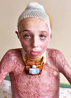 Даня Бултаков, 11 лет, термический ожог пламенем 3–4 степени, спасет операция, требуются расходные материалы. 520983 руб.