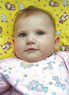 Арина Кулаева, 4 месяца, акушерский паралич слева, спасет серия операций. 913140 руб.