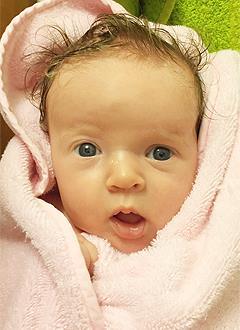 Вика Чуланова, 3 месяца, деформация черепа, требуется лечение шлемами. 180000 руб.