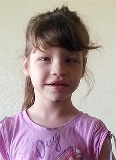 Люда Колесникова, 6 лет, детский церебральный паралич, требуется курсовое лечение. 190800 руб.