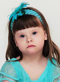 Лера Зубреева, 8 лет, синдром Дауна, эпилепсия, требуется лечение. 199430 руб.