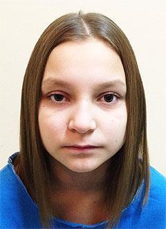 Яна Кадыкова, 13 лет, опухоль головного мозга, спасет операция. 348871 руб.