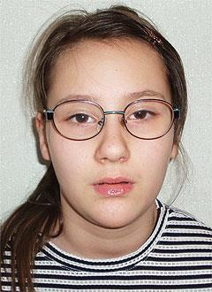 Маша Макарова, 12 лет, детский церебральный паралич, требуется операция и восстановительное лечение. 315348 руб.