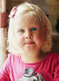 Маша Наставина, 4 года, врожденная двусторонняя косолапость, рецидив, требуется лечение. 151900 руб.