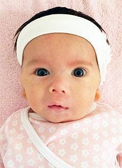 Рита Вольных, 2 месяца, атрезия (недоразвитие) наружных слуховых проходов, двусторонняя тугоухость 3-й степени, требуется слуховой аппарат. 316820 руб.