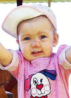 Маша Травкина, 2 года, деформация черепа, аномалия развития носа, требуется операция. 372000 руб.