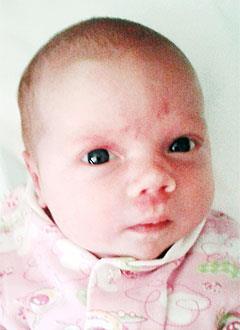 Соня Спиридонова, 1 месяц, врожденная двусторонняя косолапость, требуется лечение по методу Понсети. 151900 руб.