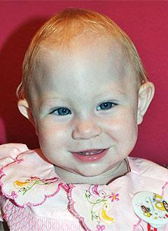 Вика Беляева, 10 месяцев, деформация черепа, спасет операция, требуются расходные материалы. 690000 руб.