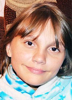 Ксюша Сорокина, 12 лет, деформация грудной клетки 3-й степени, реберная дисплазия, спасет операция. 256892 руб.