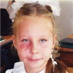 Таня Пустоварова, мальформация кровеносных сосудов лица, требуется лечение методом импульсной фототерапии, 160000 руб.