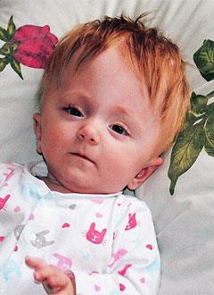 Маша Княгинина, 2 года, симптоматическая эпилепсия, спастический тетрапарез (двигательные нарушения, частичный паралич), требуется лечение. 199430 руб.