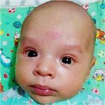 Адель Галиев, врожденная двусторонняя косолапость, требуется лечение по методу Понсети, 151900 руб.