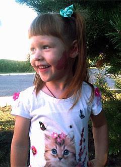 Маша Терехина, 4 года, мальформация сосудов лица и ушных раковин, требуется лечение. 300000 руб.