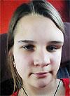 Юля Шимохина, 17 лет, фиброзная дисплазия орбитальной области, требуется подготовка к операции и имплант. 128375 руб.