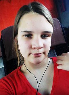 Юля Шимохина, 17 лет, фиброзная дисплазия орбитальной области, требуется подготовка к операции и имплант. 206340 руб.