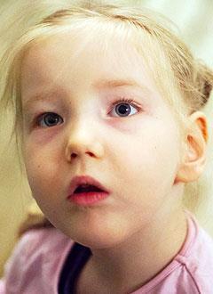 Валя Рувенная, 6 лет, детский церебральный паралич, спастический тетрапарез, требуется лечение. 199430 руб.