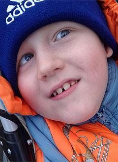 Саша Одинцов, 7 лет, правосторонний гемипарез (частичный паралич), эпилепсия, требуется инвалидная коляска. 201051 руб.