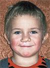 Вася Ефимов, 7 лет, рубцовая деформация губы и носа, недоразвитие челюсти, требуется лечение. 366000 руб.