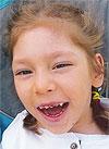 Вероника Михайлова, 8 лет, детский церебральный паралич, эпилепсия, требуется лечение. 199430 руб.