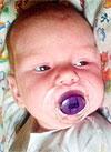 Таня Анохина, 2 месяца, врожденная левосторонняя косолапость, требуется лечение по методу Понсети. 119350 руб.