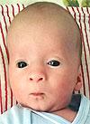 Мирон Лавров, 4 месяца, врожденная левосторонняя косолапость, требуется лечение по методу Понсети. 119350 руб.
