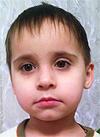 Рома Кугергин, 3 года, врожденный порок сердца, спасет эндоваскулярная операция. 312375 руб.