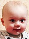 Артем Степочкин, 10 месяцев, деформация черепа, требуется лечение специальными шлемами. 180000 руб.