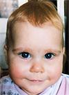 Василиса Чуликова, 1 год, нарушение ритма сердца, врожденная атриовентрикулярная блокада 3-й степени, спасет имплантация электрокардиостимулятора (ЭКС). 561271 руб.