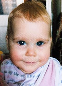 Василиса Чуликова, 1 год, нарушение ритма сердца, врожденная атриовентрикулярная блокада 3-й степени, спасет имплантация электрокардиостимулятора (ЭКС). 54124 руб.