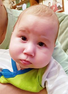 Кирилл Казачук, 6 месяцев, деформация черепа, требуется лечение специальными шлемами. 180000 руб.